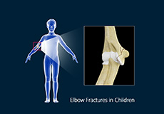 Forearms Fracture in Children