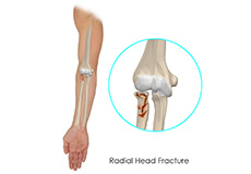 Radial Head Fractures